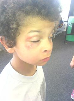 9 Year Old Autistic Child Beat By Police, Arrested for Aggravated Battery