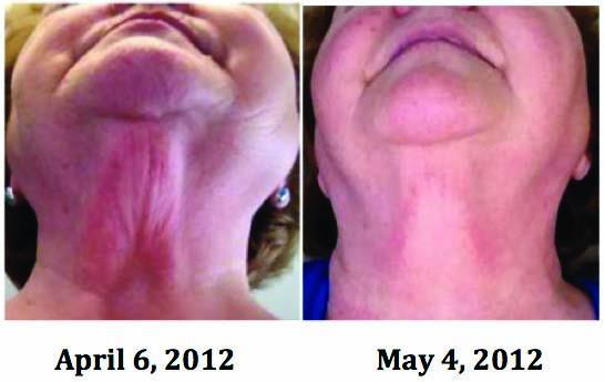 reduced-wrinkles.jpg