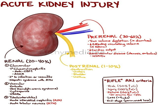 acute kidney injury Background several studies have shown that long-term survival after acute  kidney injury (aki) is reduced even if there is clinical recovery.