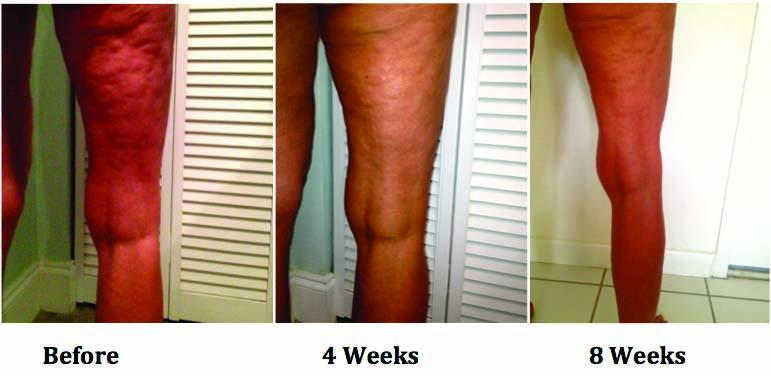 reduced-cellulite.jpg